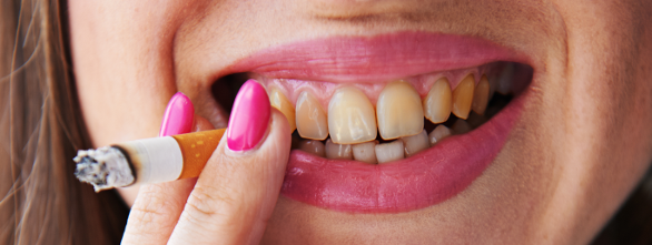 smokers teeth before and after wwwpixsharkcom images