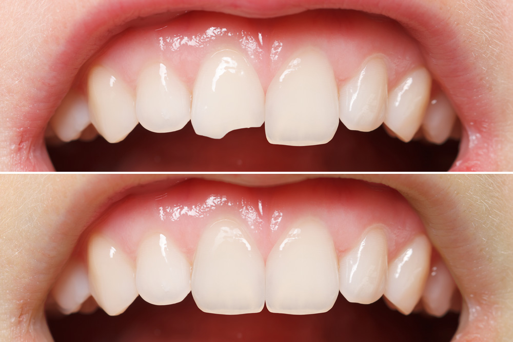 Image result for How to get the Right Cosmetic Dental professional to your Personal Demands