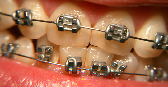 Affinity dental clinics dentist philippines 3 little known factors that could make your teeth yellow solutioingenieria Image collections